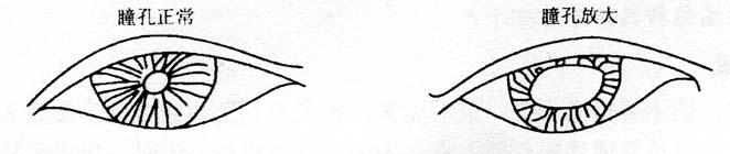 图4-4瞳孔正常与放大对比