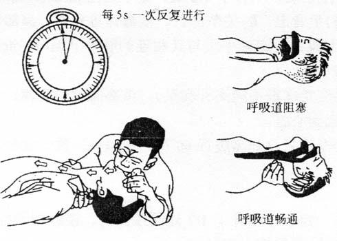 图4-5口对口人工呼吸(一)
