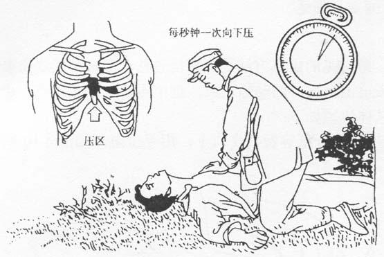 图4-7  体外心脏挤压法手掌位置