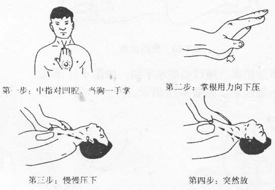 图4-8  体外心脏挤压法操作全过程
