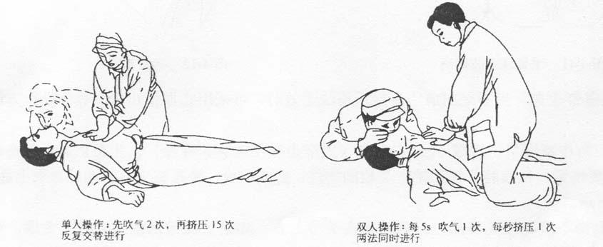 图4-9  呼吸、心跳全停止急救单人与双人操作法